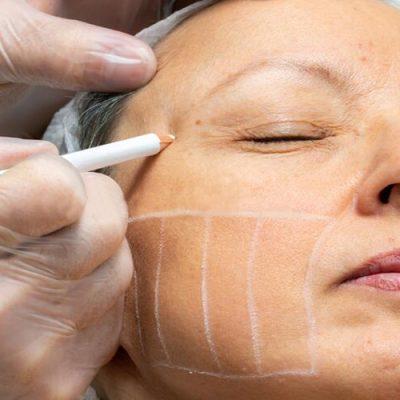HIFU facial treatment in Cradley Heath, Sandwell near Birmingham