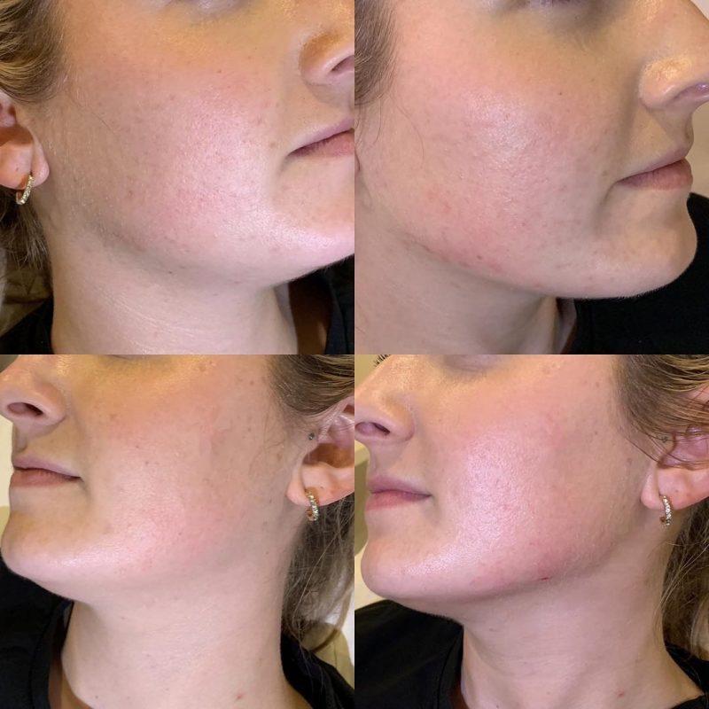 chin and jawline enhancement, jaw fillers in Cradley Heath, Sandwell, Birmingham UK
