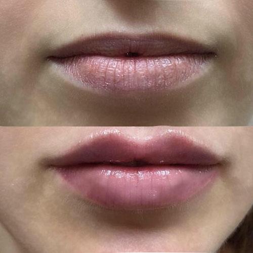 dermal fillers enhancement, jaw augmentation, cheek fillers, lip fillers in sandwell, Birmingham