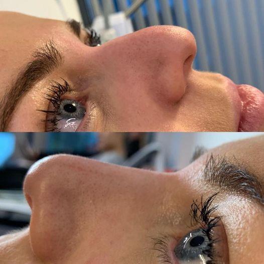 non surgical rhynoplasty, nose filler in Cradley Heath, sandwell Birmingham uk