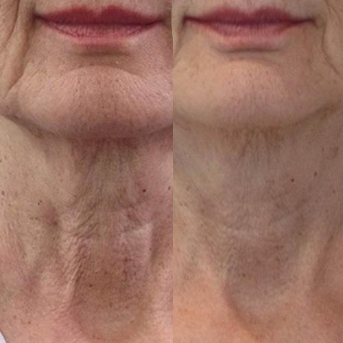 boost your skin with profhilio in Cradley Heath, Sandwell near Birmingham